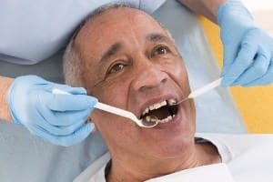 Re-treatment options for long-term dental health