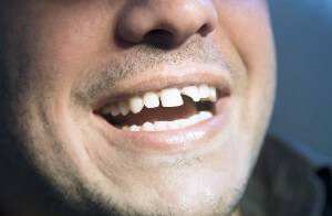 Traumatic Tooth Injuries