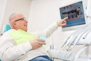 Why Root Canals Aren't Scary