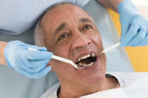 Dental Avulsion Explained | Buffalo Root Canal Dentist | Endodontist