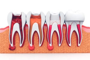 Safety of Root Canals | Precision Endodontics, PC | Buffalo Endodontist
