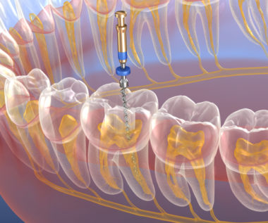 Root Canal Retreatment in Buffalo, NY  Williamsville Endodontist